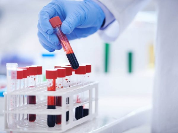 NHS to Trial Blood Test That Can Detect Over 50 Cancer Types
